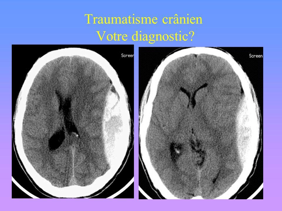 Aucun intérêt des radiographies standards du crâne