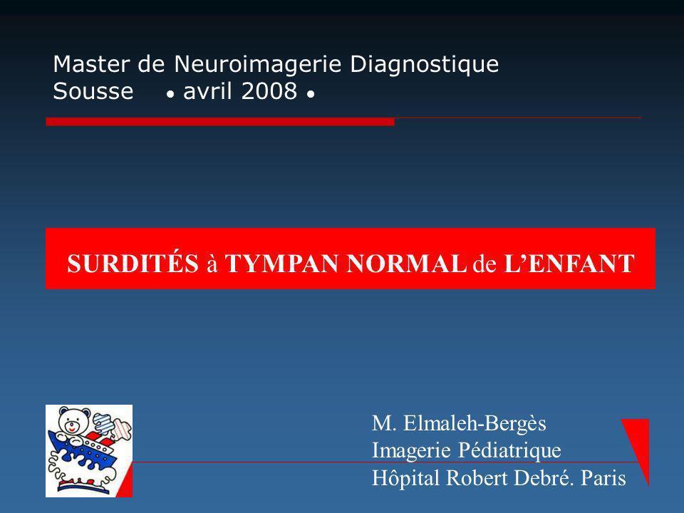 SURDITÉS à TYMPAN NORMAL de LENFANT Master de Neuroimagerie Diagnostique Sousse avril 2008 M. Elmaleh-Bergès Imagerie Pédiatrique Hôpital Robert Debré