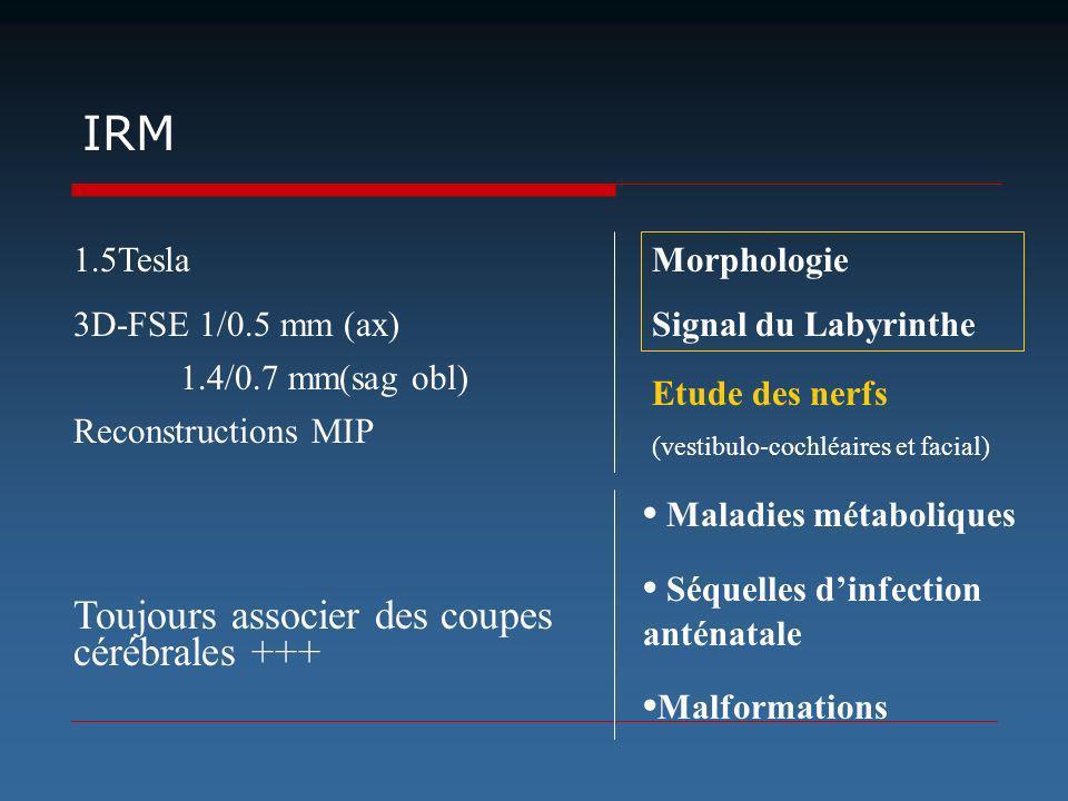 IRM 1.5Tesla 3D-FSE 1/0.5 mm (ax) 1.4/0.7 mm(sag obl) Reconstructions MIP Toujours associer des coupes cérébrales +++ Maladies métaboliques Séquelles