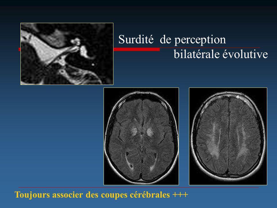 Surdité de perception bilatérale évolutive Toujours associer des coupes cérébrales +++