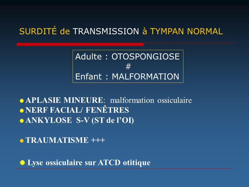 SURDITÉ de TRANSMISSION à TYMPAN NORMAL APLASIE MINEURE: malformation ossiculaire NERF FACIAL/ FENÊTRES ANKYLOSE S-V (ST de lOI) TRAUMATISME +++ Lyse