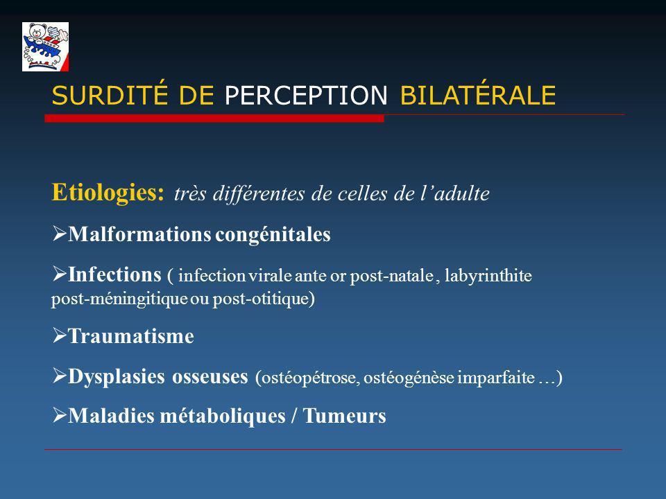 Etiologies: très différentes de celles de ladulte Malformations congénitales Infections ( infection virale ante or post-natale, labyrinthite post-méni