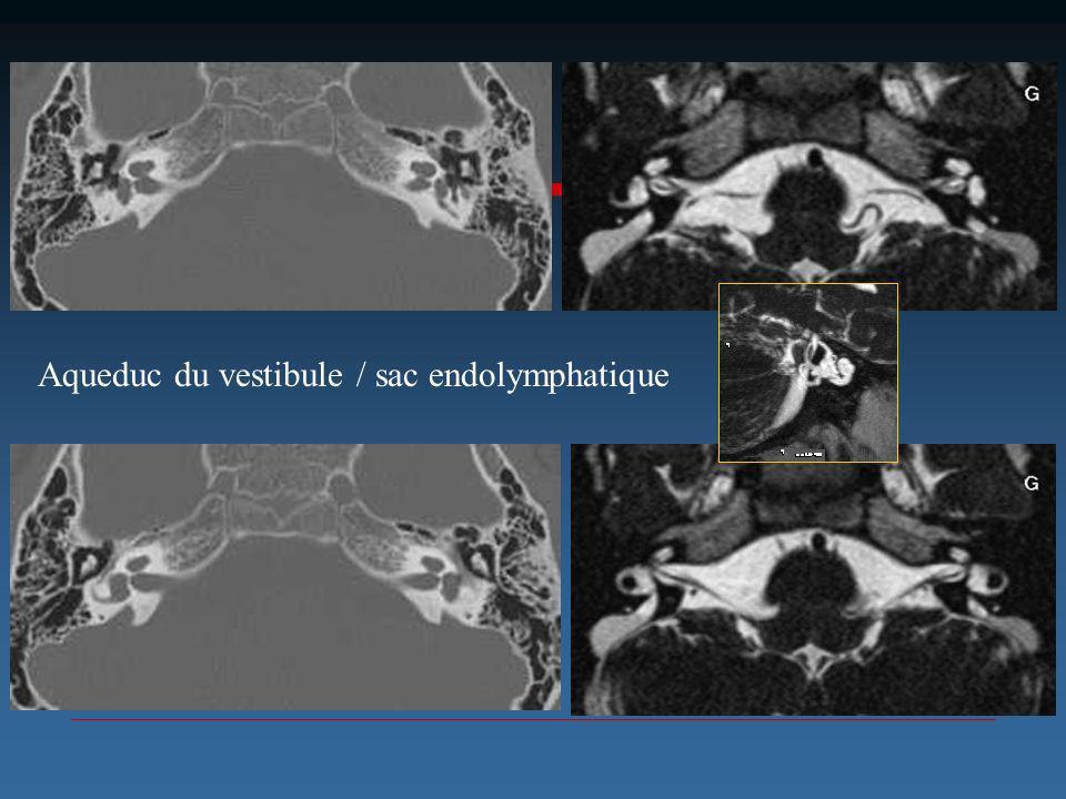 Aqueduc du vestibule / sac endolymphatique