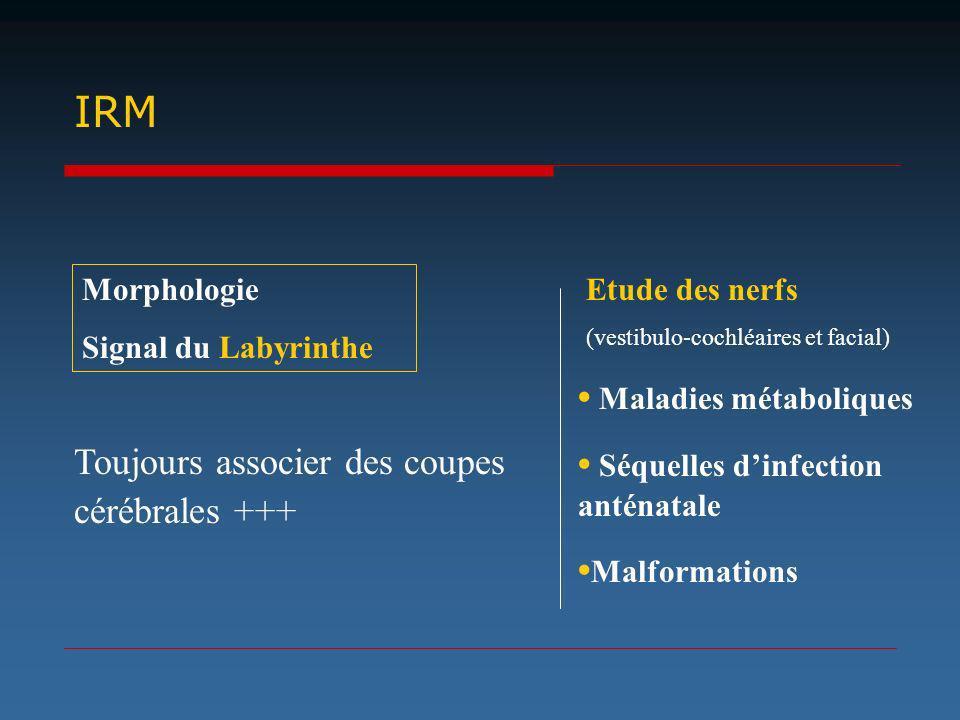 IRM Toujours associer des coupes cérébrales +++ Maladies métaboliques Séquelles dinfection anténatale Malformations Morphologie Signal du Labyrinthe E