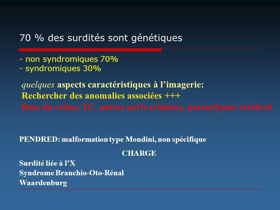CHARGE Surdité liée à lX Syndrome Branchio-Oto-Rénal Waardenburg quelques aspects caractéristiques à limagerie: Rechercher des anomalies associées +++