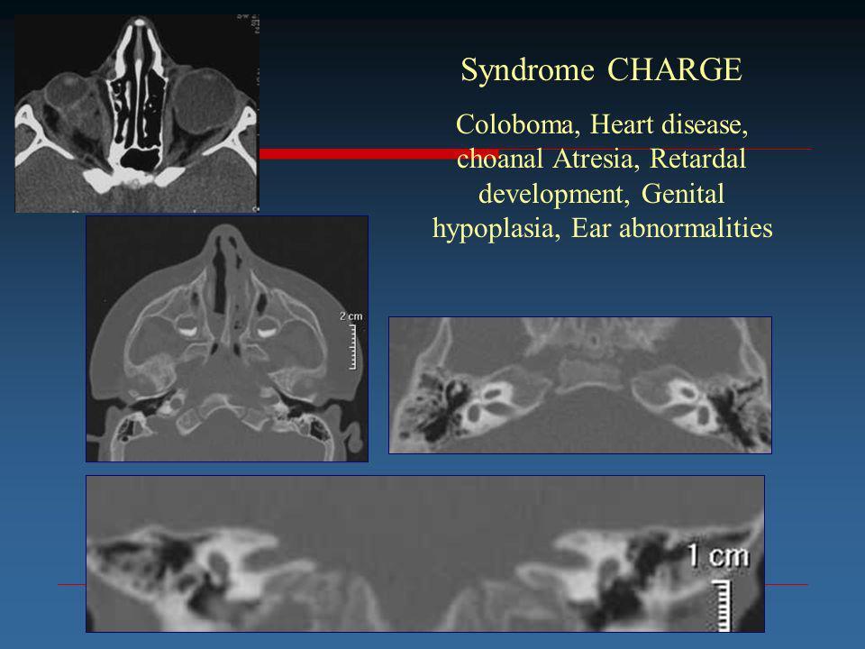 Syndrome CHARGE Coloboma, Heart disease, choanal Atresia, Retardal development, Genital hypoplasia, Ear abnormalities