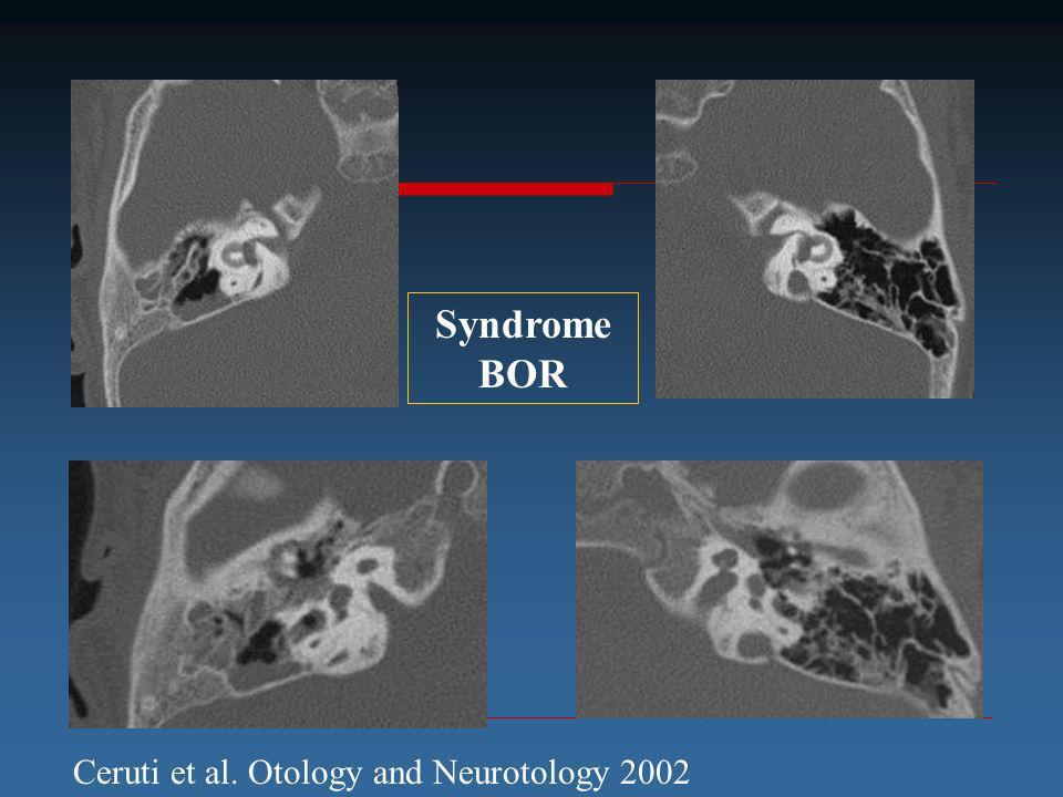 Syndrome BOR Ceruti et al. Otology and Neurotology 2002