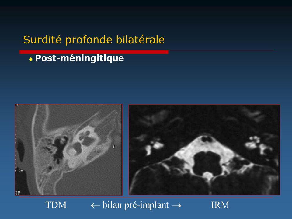 Surdité profonde bilatérale Post-méningitique TDMIRM bilan pré-implant