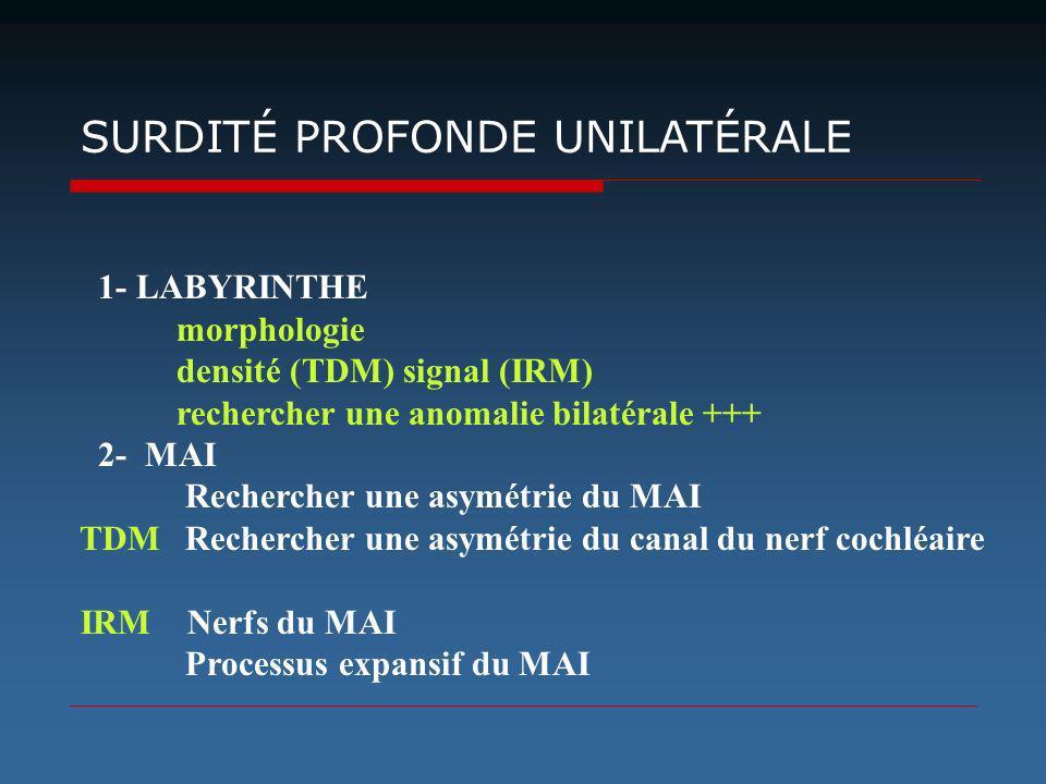 1- LABYRINTHE morphologie densité (TDM) signal (IRM) rechercher une anomalie bilatérale +++ 2- MAI Rechercher une asymétrie du MAI TDM Rechercher une