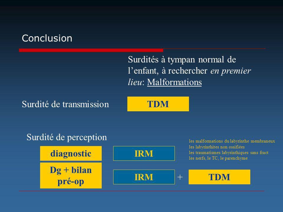 Surdité de transmission TDM Conclusion Surdités à tympan normal de lenfant, à rechercher en premier lieu: Malformations Surdité de perception IRM TDM