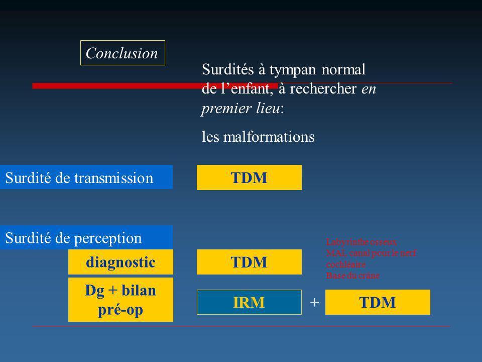 Surdité de transmission TDM Conclusion Surdités à tympan normal de lenfant, à rechercher en premier lieu: les malformations Surdité de perception TDM