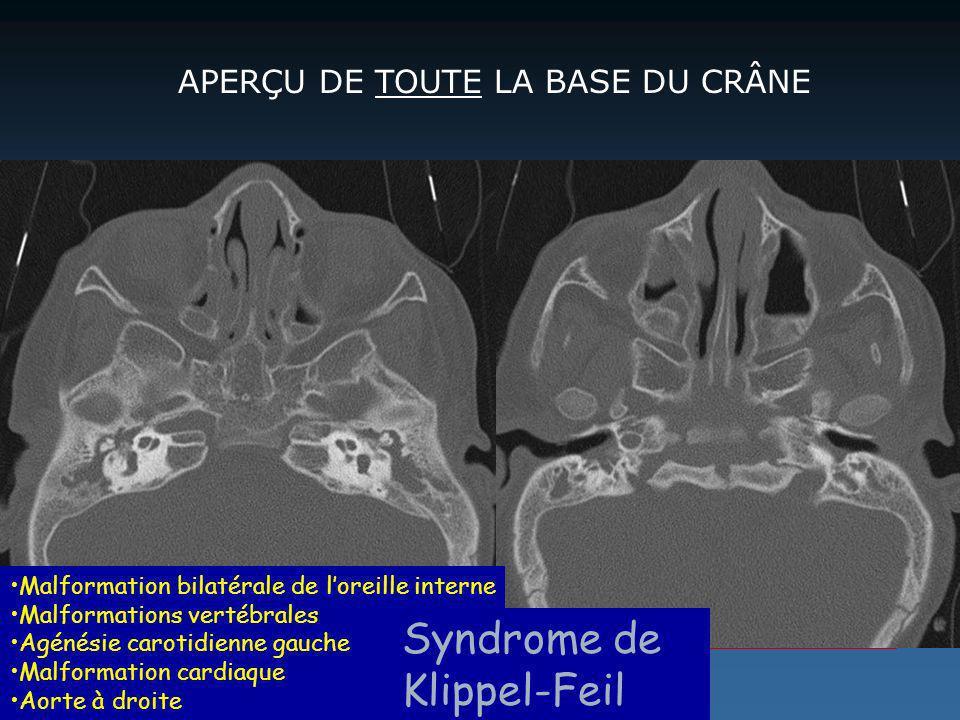 APERÇU DE TOUTE LA BASE DU CRÂNE Malformation bilatérale de loreille interne Malformations vertébrales Agénésie carotidienne gauche Malformation cardi