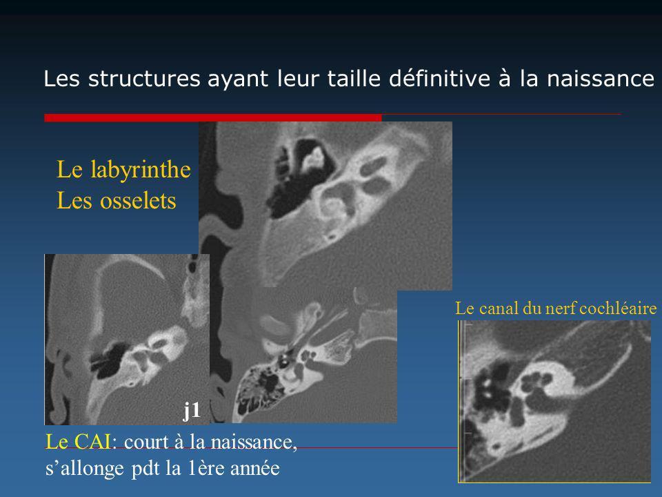 Les structures ayant leur taille définitive à la naissance j1 Le CAI: court à la naissance, sallonge pdt la 1ère année Le labyrinthe Les osselets Le c