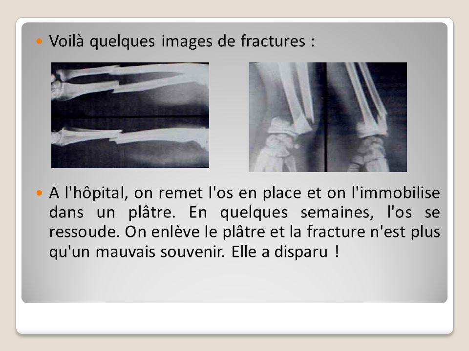 Voilà quelques images de fractures : A l'hôpital, on remet l'os en place et on l'immobilise dans un plâtre. En quelques semaines, l'os se ressoude. On