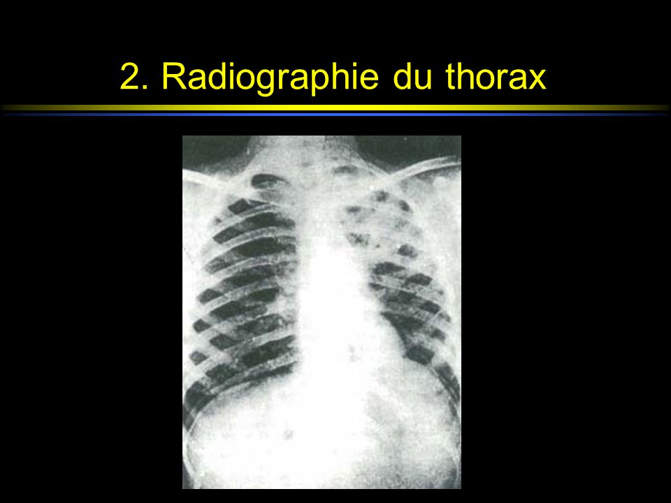 2. Radiographie du thorax