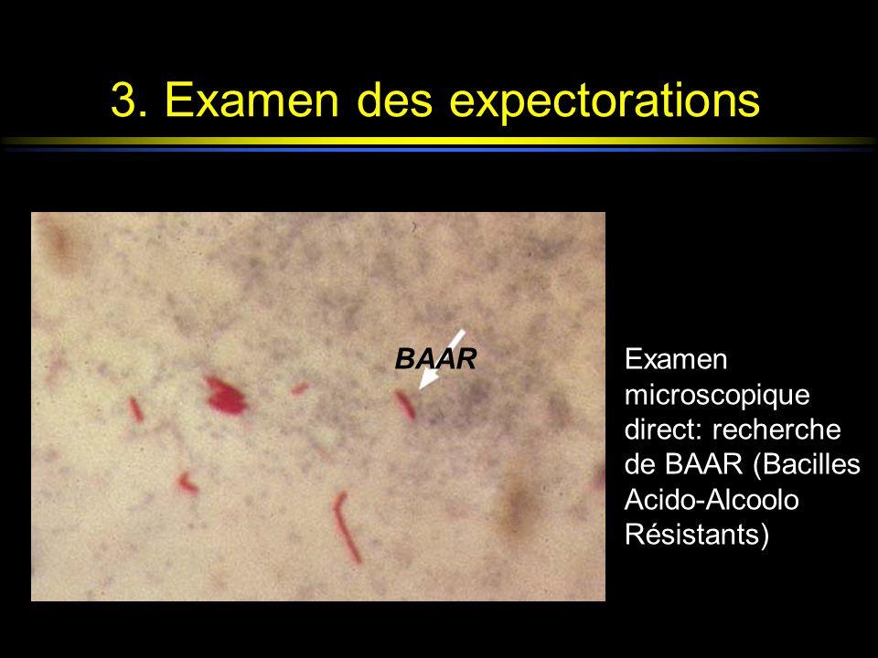 3. Examen des expectorations BAARExamen microscopique direct: recherche de BAAR (Bacilles Acido-Alcoolo Résistants)