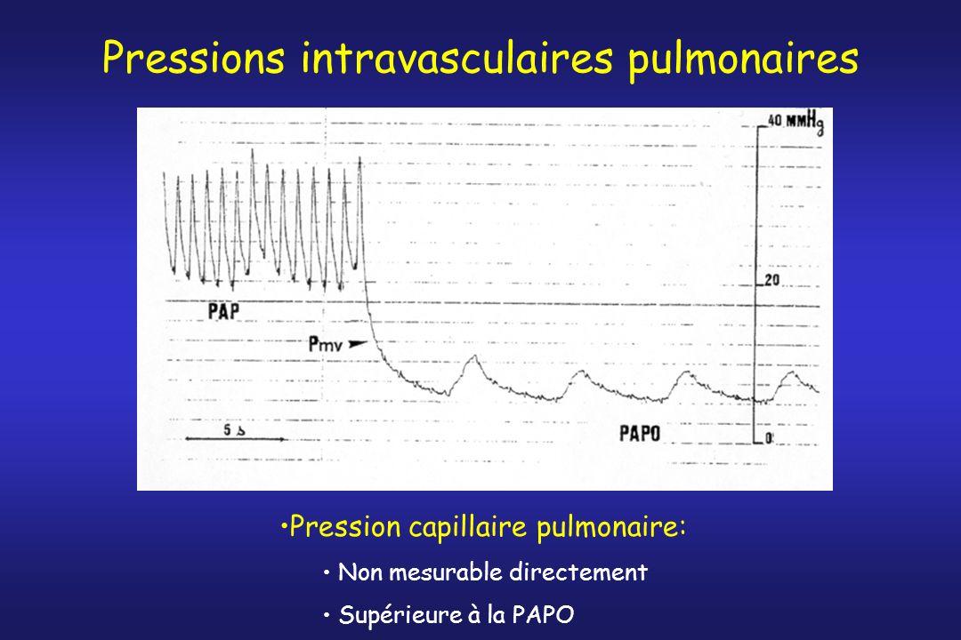 Pressions intravasculaires pulmonaires Pression capillaire pulmonaire: Non mesurable directement Supérieure à la PAPO
