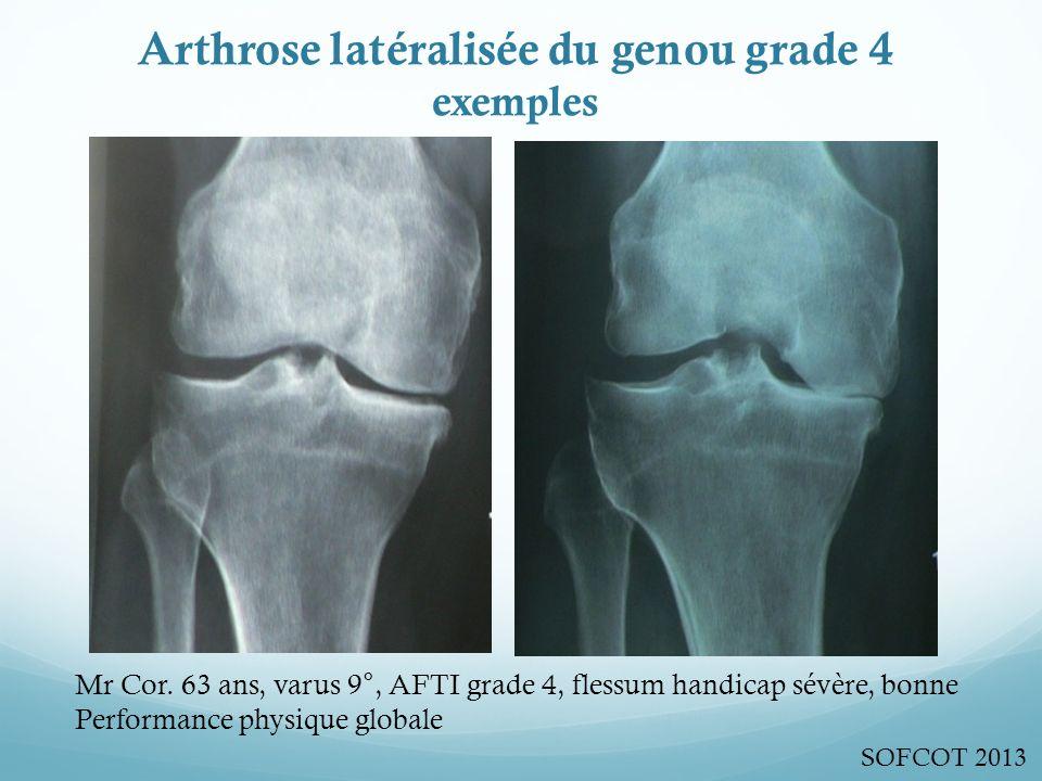 Arthrose latéralisée du genou grade 4 exemples Mr Cor.