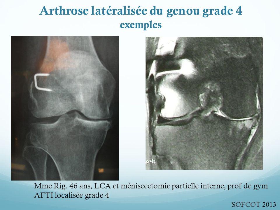 Arthrose latéralisée du genou grade 4 exemples Mme Rig.