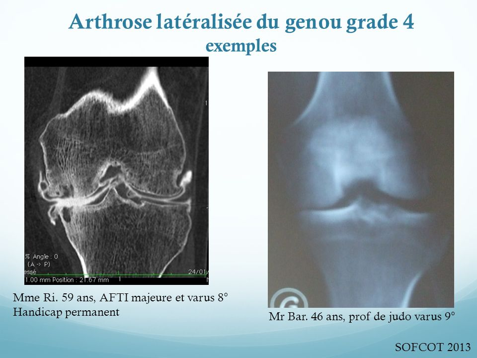 Arthrose latéralisée du genou grade 4 exemples Mme Ri.