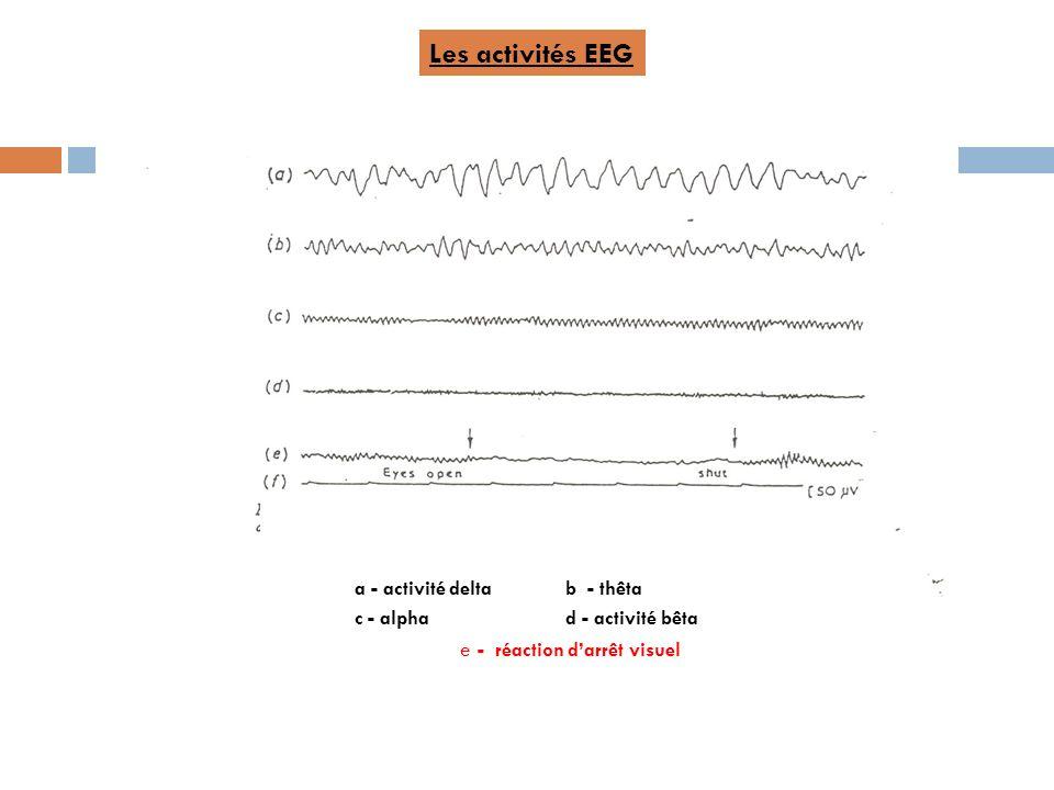 a - activité deltab - thêta c - alpha d - activité bêta e - réaction darrêt visuel