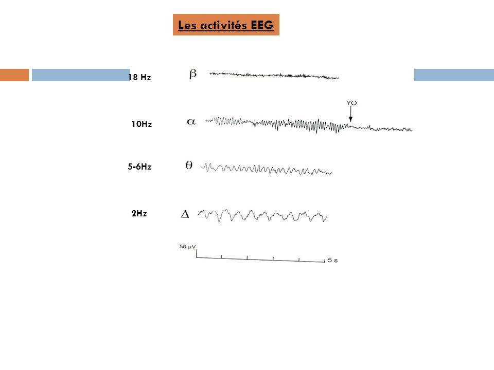 18 Hz 10Hz 5-6Hz 2Hz Les activités EEG