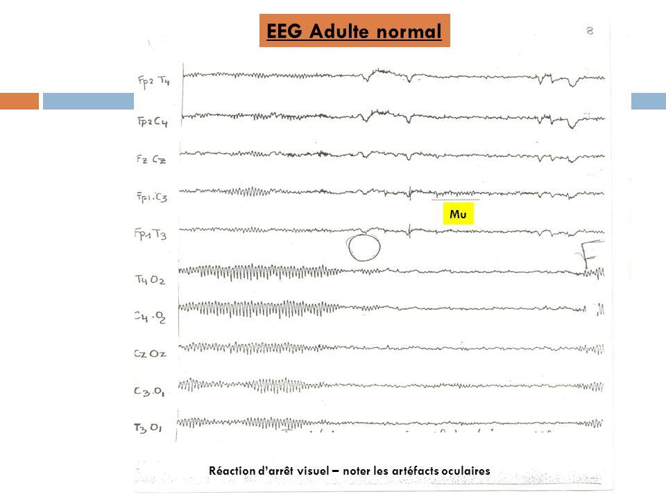 EEG Adulte normal Réaction darrêt visuel – noter les artéfacts oculaires Mu