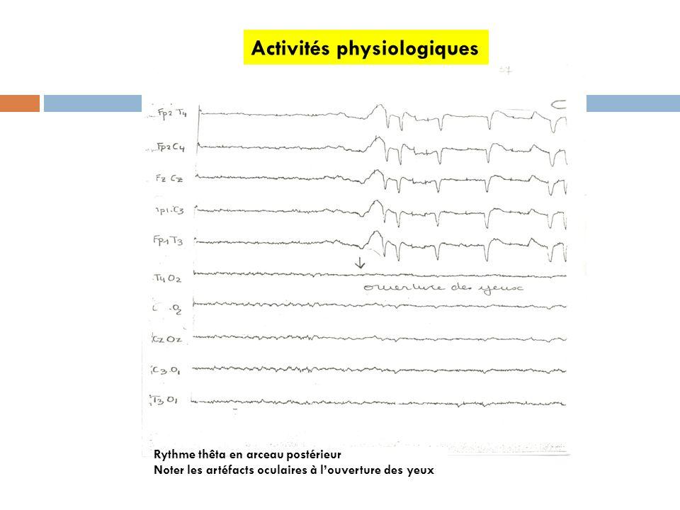 Activités physiologiques Rythme thêta en arceau postérieur Noter les artéfacts oculaires à louverture des yeux