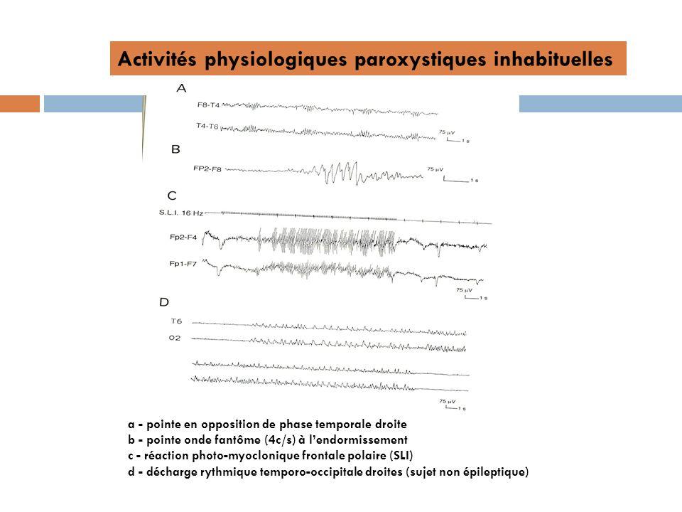 Activités physiologiques paroxystiques inhabituelles a - pointe en opposition de phase temporale droite b - pointe onde fantôme (4c/s) à lendormisseme