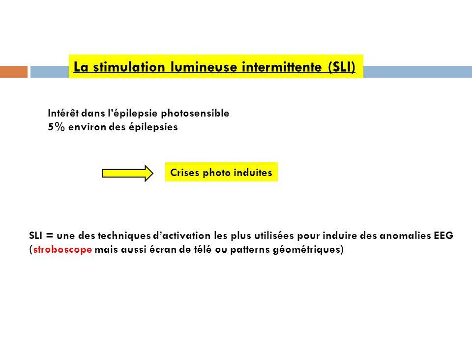 La stimulation lumineuse intermittente (SLI) Intérêt dans lépilepsie photosensible 5% environ des épilepsies Crises photo induites SLI = une des techn