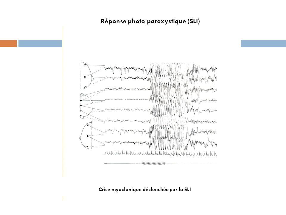 Réponse photo paroxystique (SLI) Crise myoclonique déclenchée par la SLI