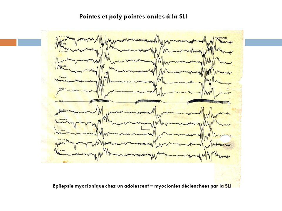 Pointes et poly pointes ondes à la SLI Epilepsie myoclonique chez un adolescent – myoclonies déclenchées par la SLI
