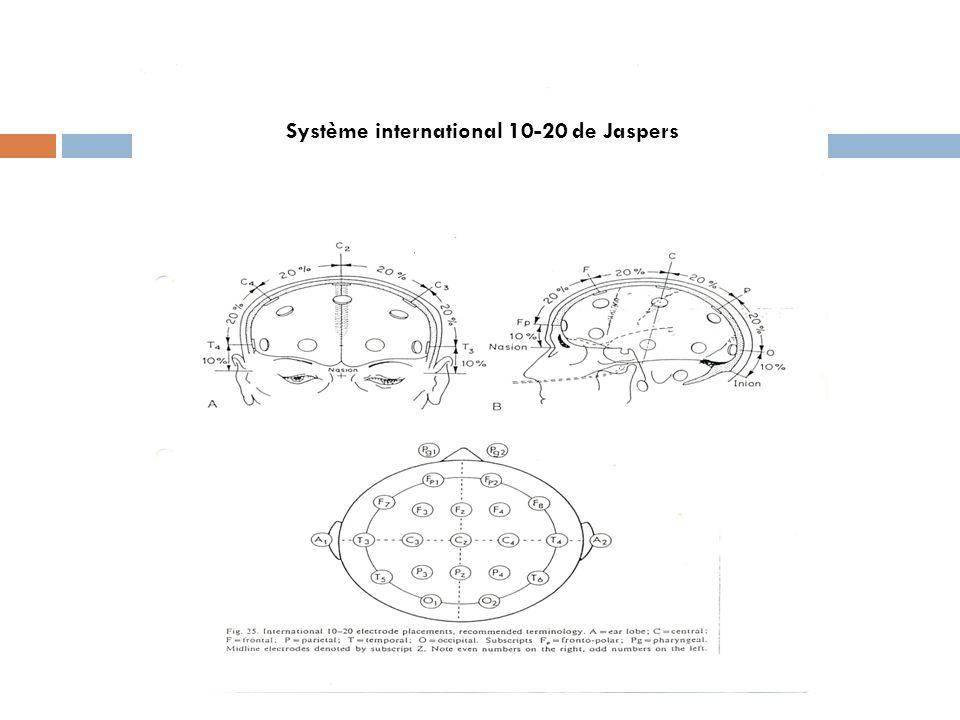 Système international 10-20 de Jaspers