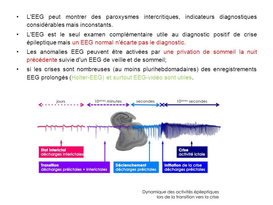 L'EEG peut montrer des paroxysmes intercritiques, indicateurs diagnostiques considérables mais inconstants. L'EEG est le seul examen complémentaire ut