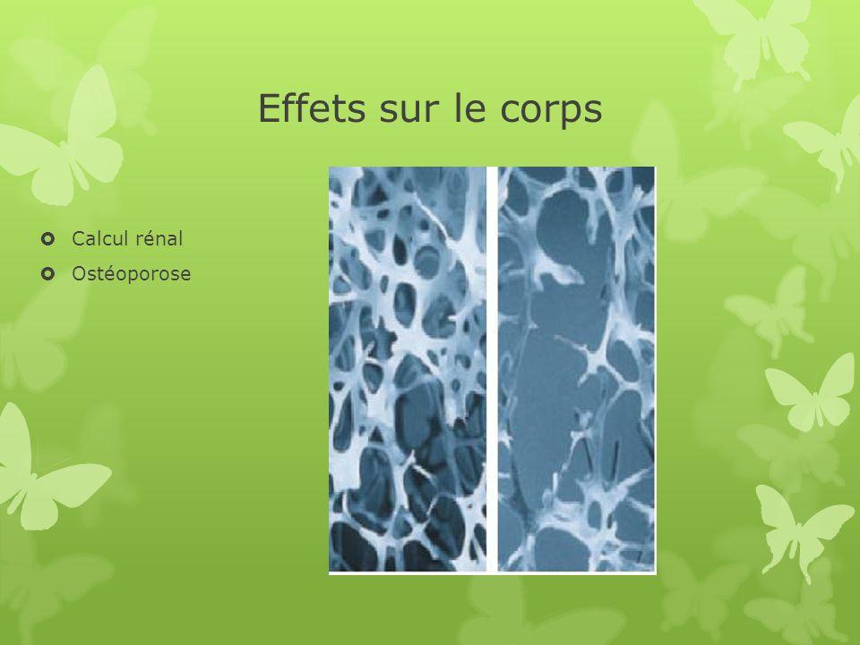 Effets sur le corps Calcul rénal Ostéoporose