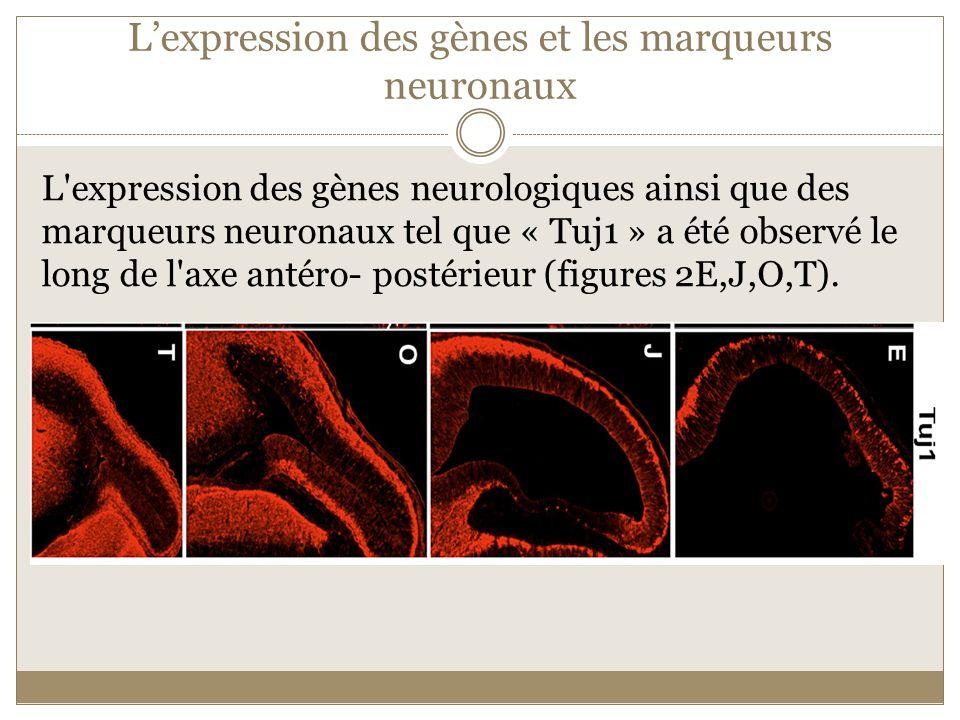 Lexpression des gènes et les marqueurs neuronaux L'expression des gènes neurologiques ainsi que des marqueurs neuronaux tel que « Tuj1 » a été observé