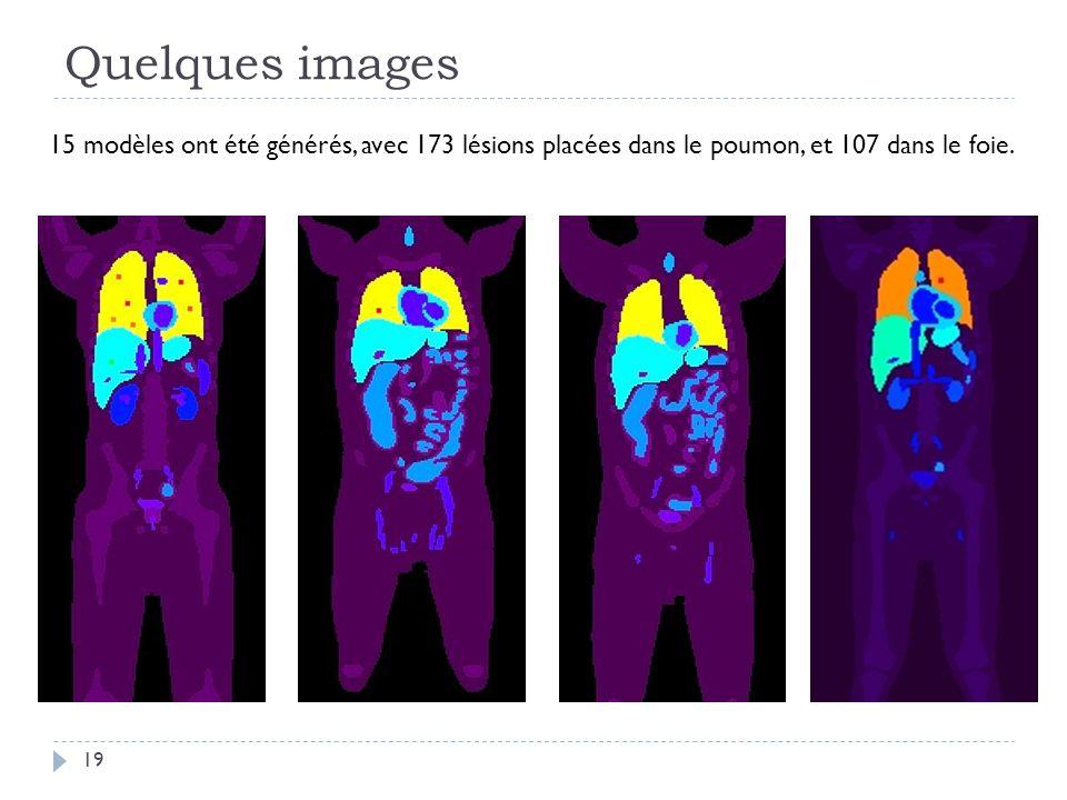 Quelques images 19 15 modèles ont été générés, avec 173 lésions placées dans le poumon, et 107 dans le foie.