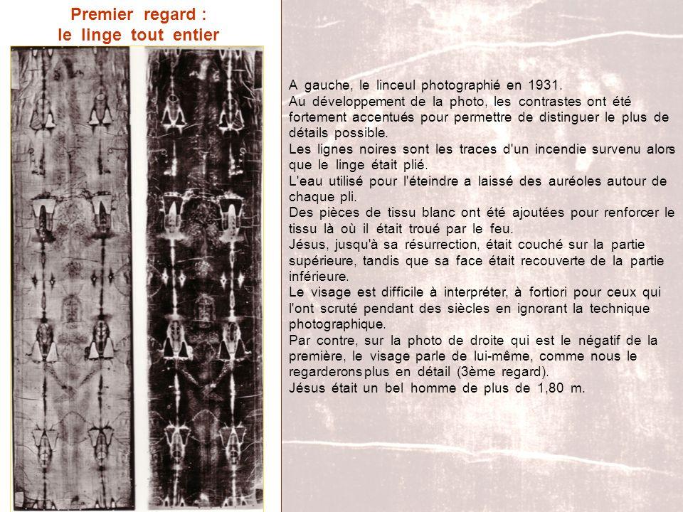 Premier regard : le linge tout entier A gauche, le linceul photographié en 1931. Au développement de la photo, les contrastes ont été fortement accent
