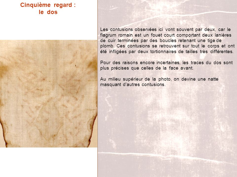 Cinquième regard : le dos Les contusions observées ici vont souvent par deux, car le flagrum romain est un fouet court comportant deux lanières de cui