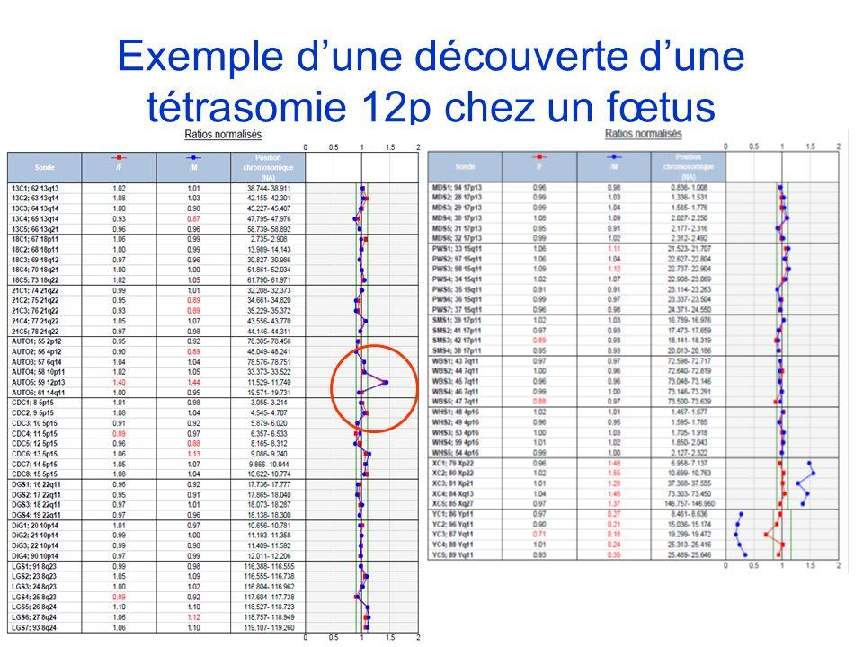 Exemple dune découverte dune tétrasomie 12p chez un fœtus