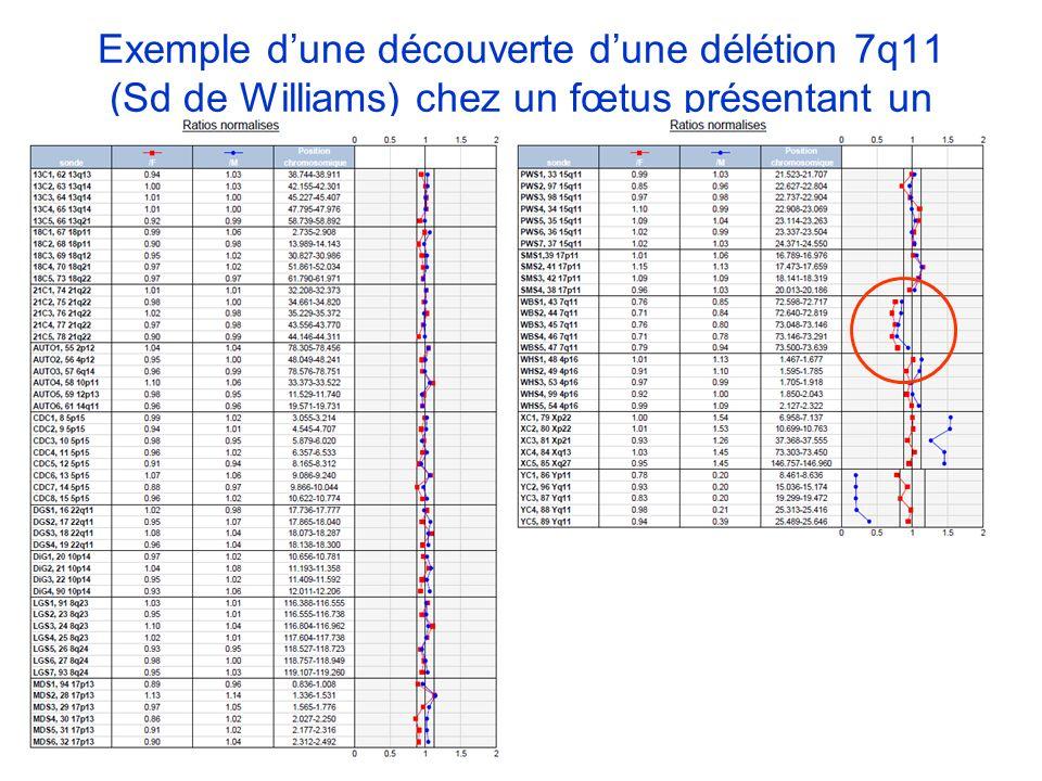 Exemple dune découverte dune délétion 7q11 (Sd de Williams) chez un fœtus présentant un RCIU à 34SA