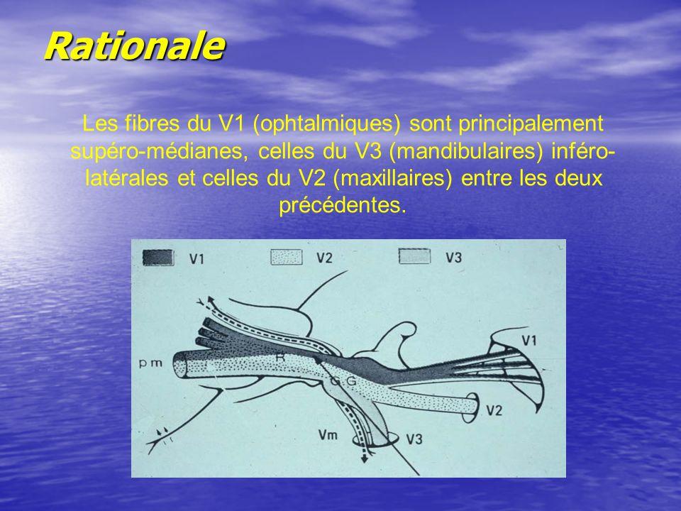 Rationale Les fibres du V1 (ophtalmiques) sont principalement supéro-médianes, celles du V3 (mandibulaires) inféro- latérales et celles du V2 (maxillaires) entre les deux précédentes.