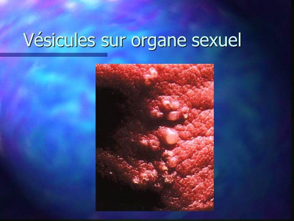 Vésicules sur organe sexuel