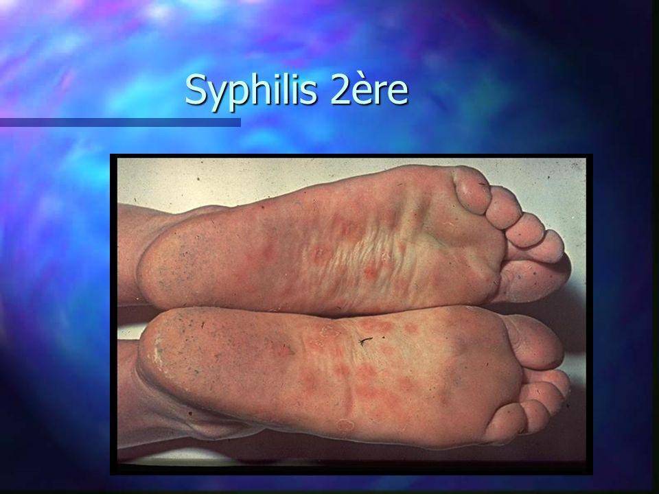Syphilis 2ère
