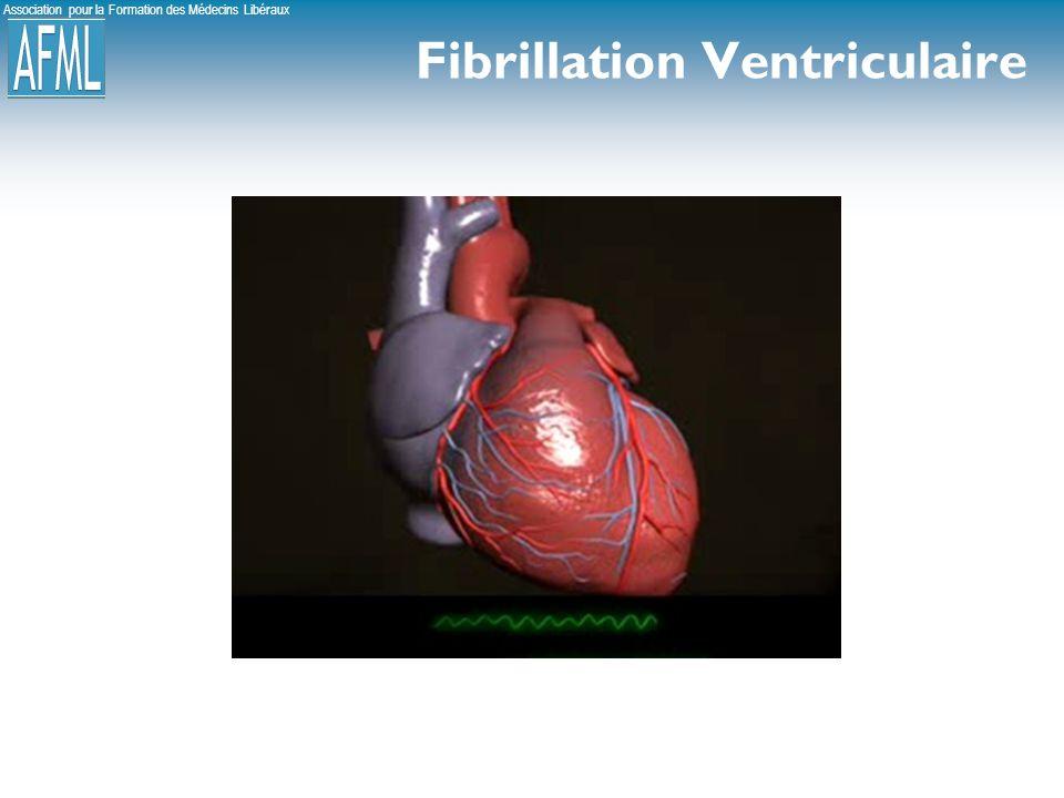 Association pour la Formation des Médecins Libéraux Fibrillation Ventriculaire
