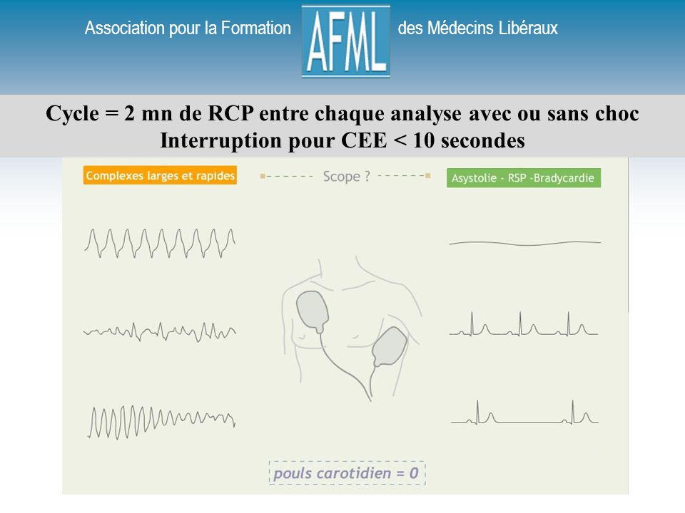 Association pour la Formation des Médecins Libéraux Cycle = 2 mn de RCP entre chaque analyse avec ou sans choc Interruption pour CEE < 10 secondes