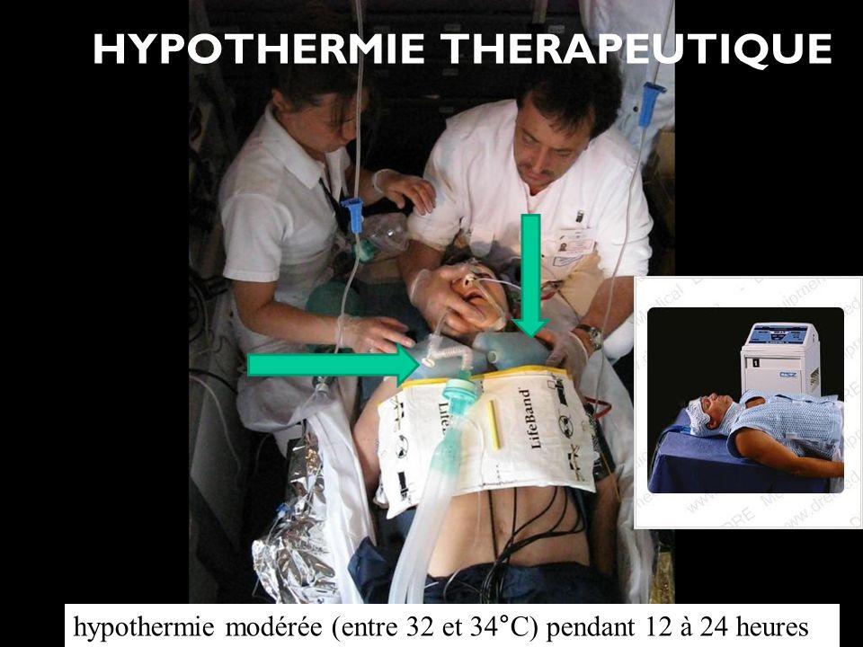 Association pour la Formation des Médecins Libéraux HYPOTHERMIE THERAPEUTIQUE hypothermie modérée (entre 32 et 34°C) pendant 12 à 24 heures