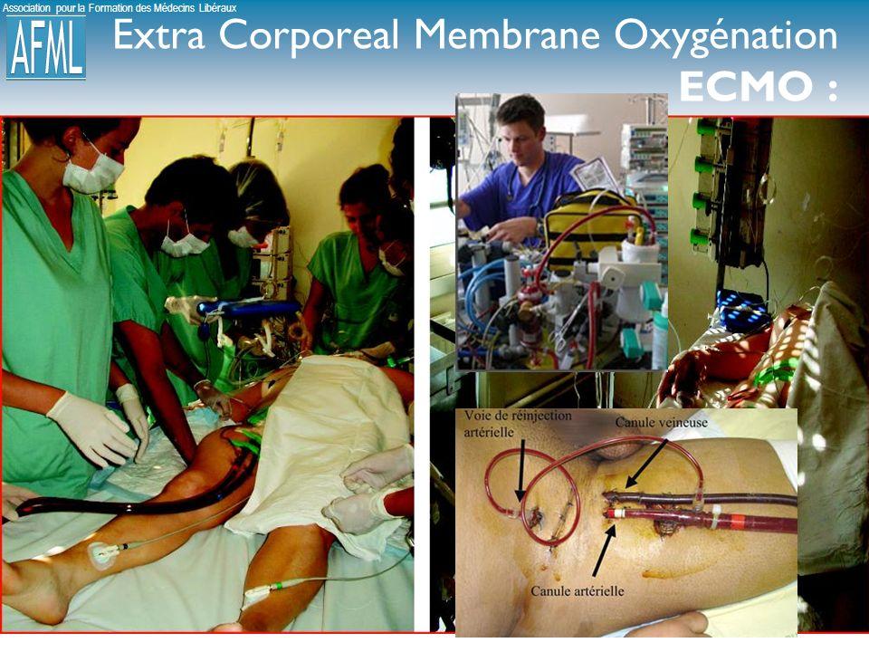 Association pour la Formation des Médecins Libéraux Extra Corporeal Membrane Oxygénation ECMO :