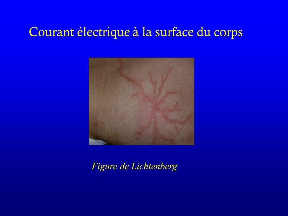 Courant électrique à la surface du corps Figure de Lichtenberg