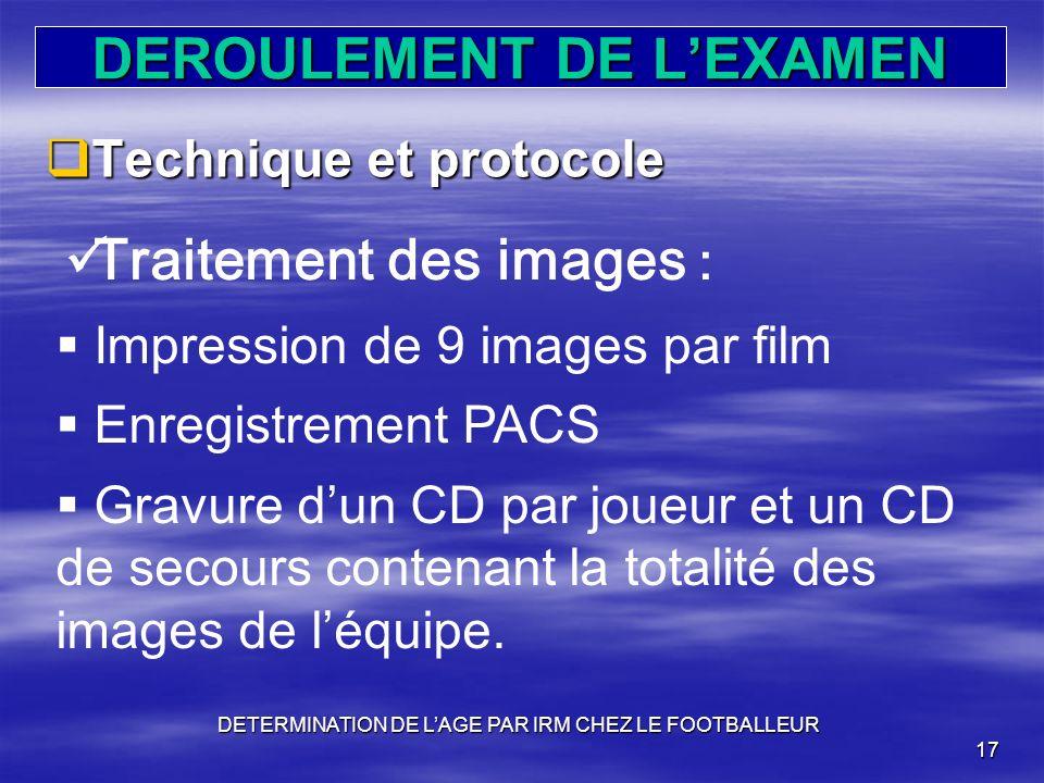 DEROULEMENT DE LEXAMEN Technique et protocole Technique et protocole DETERMINATION DE LAGE PAR IRM CHEZ LE FOOTBALLEUR 17 Traitement des images : Impr